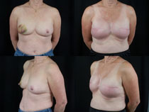 Breast - Reconstruction