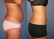Body - Liposuction